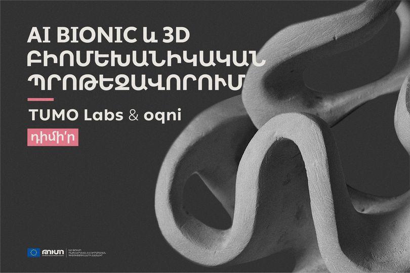 Թումո լաբերը ևoqni-ին մեկնարկում են AI Bionic և 3D բիոմեխանիկական պրոթեզավորում նախագիծ